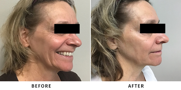 before and after medical aesthetic treatment